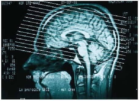 tumeur vertébrale nuque